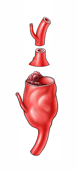 Erweiterung der Arterie führt zu einem Aneurysma mit der Gefahr der plötzlichen Ruptur mit lebensbedrohlichen Komplikationen
