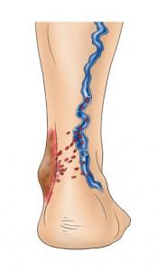 Bei Belassen von Krampfadern staut sich das Blut über die Jahre am tiefsten Punkt des Körpers, den Knöcheln. Aufgrund dem erhöhten Venendruck treten die roten Blutkörperchen aus den Venen aus (Poren) und bleiben unter der Haut liegen. Die roten Blutkörperchen enthalten Eisen und lagern dieses in Form von Hämosidern unter der Haut ab (Verrostung). Deutlich erkennbar an den zunehmenden braunen Hautveränderungen im Bereich der Unterschenkel/ Füsse.