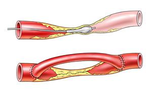 Ist die Arterie nur verengt oder kurzstreckig durch den Kalk verschlossen, kann mit einer Ballondilation die Verengung aufgedehnt und bei Bedarf zusätzlich ein Stent eingelegt werden. Bei starker Verkalkung oder langstreckigem Verschluss bleibt oft nur die chirurgische Therapie mit Entfernung vom Kalk oder der Überbrückung vom Verschluss mit der BypassOperation. In einigen Fällen ist auch die kombinierte Therapie mit Ballon und Operation sinnvoll (Hybrid Verfahren).