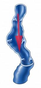 """Sind die Klappen defekt– in den allermeisten Fällen genetisch- fliesst das Blut in die falsche Richtung zurück ins Bein mit all seinen Folgen wie: Schwergefühl, Schwellung, Ekzem, Thrombosegefahr, Entzündungen, Blutung, Hautschädigung bis zu """"offenen Beinen""""."""