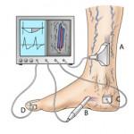 Krampfadern werden mit der Farbultraschall Untersuchung (A) mit Bild- und Flussdarstellung oder mit der Dopplersonde (B) nur mit Flussdarstellung abgeklärt. Der gesamte Venenabstrom wird mit der Lichtreflexionsrheographie (LRR) (C) gemessen. Die arterielle Durchblutung mit der digitalen Oszillographie (D).