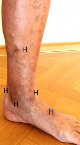Die roten Blutkörperchen, welche Eisen enthalten, verbleiben in der Unterhaut und erzeugen in der Haut eine zunehmende Braunverfärbung (Hämosiderin Ablagerung= Hyperpigmentation (H)