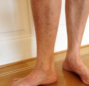 Klinisch kein Anhaltspunkt für Krampfaderleiden, jedoch typischen Krampfaderbeschwerden seit zwei Jahren.