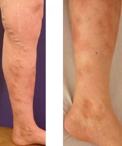 Grosse Krampfadern und beginnende Hautveränderungen