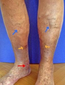 """Am Innenknöchel besteht ein Ulcus cruris """"offenes Bein"""" (roter Pfeil) als langjährige Spätkomplikation nicht therapierter Krampfadern (=chronisch venöse Insuffizienz Stadium lll). Gelber Pfeil: Hautveränderungen (Braunverfärbung, Verhärtung). Blauer Pfeil: grosse schmerzfreie Krampfadern"""