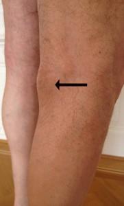 50 jähriger Patient mit Schwellung an der rechten Kniekehle (schwarzer Pfeil)