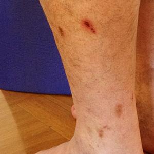 Bleibende braune Narben nach Verletzungen an den Beinen