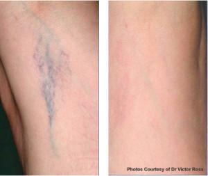 Vor / nach der Lasertherapie